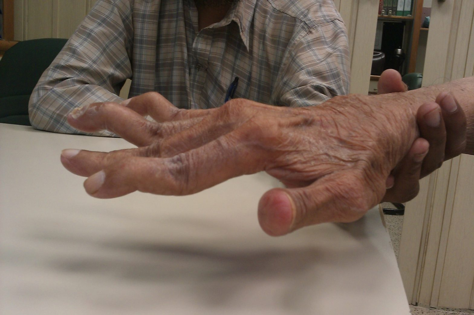Rheumatoid Arthritis: Punca, Simptom dan Cara Rawatan