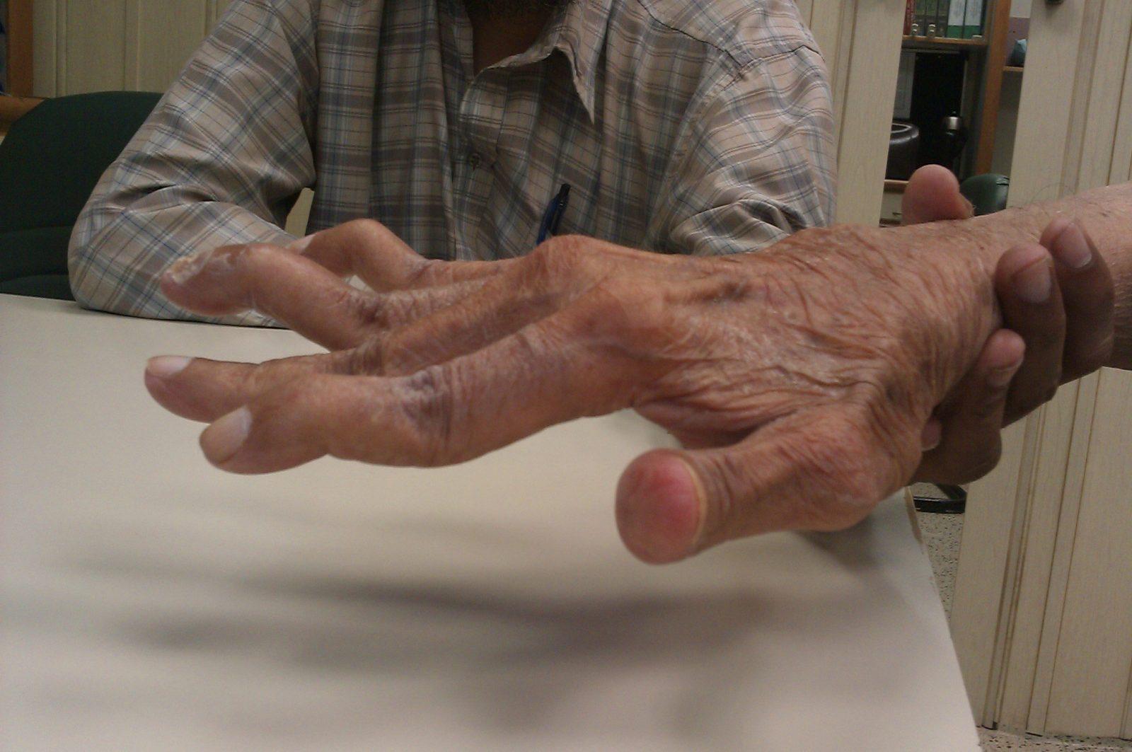 penyakit rheumatoid arthritis