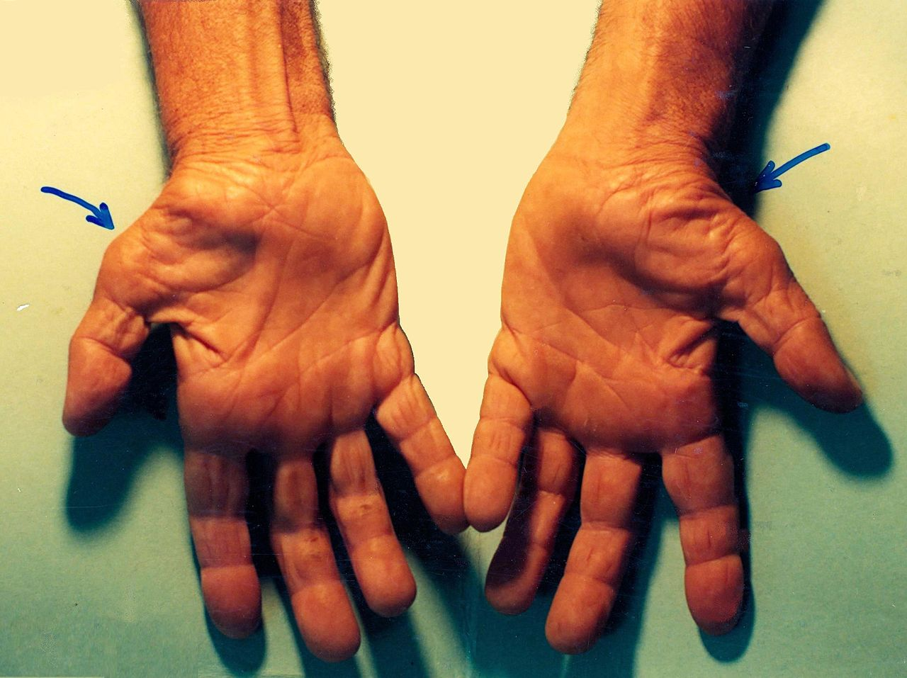 sindrom terowong karpal (carpal tunnel syndrome)