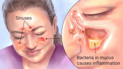 penyakit sinus