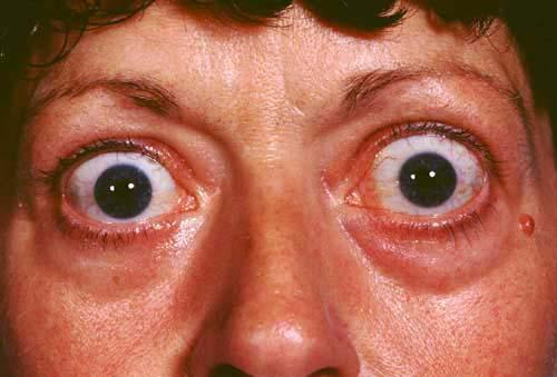 exophthalmos (hipertiroid)