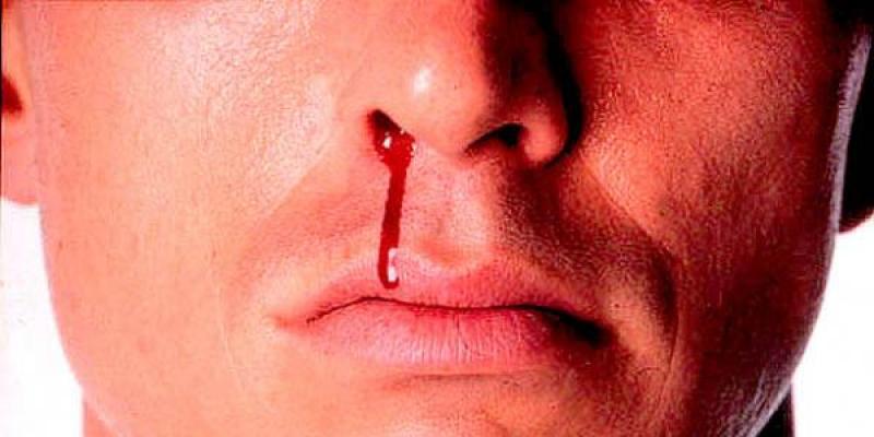 hidung berdarah