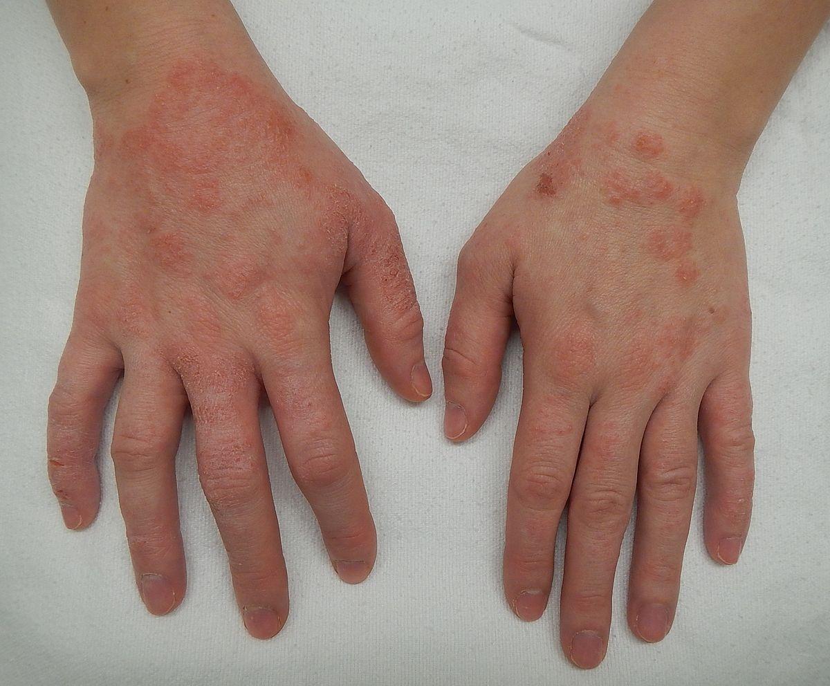 eczema (ekzema)