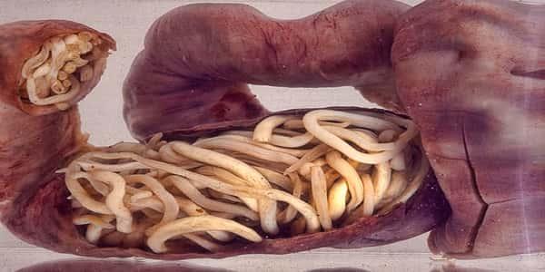 ubat cacing