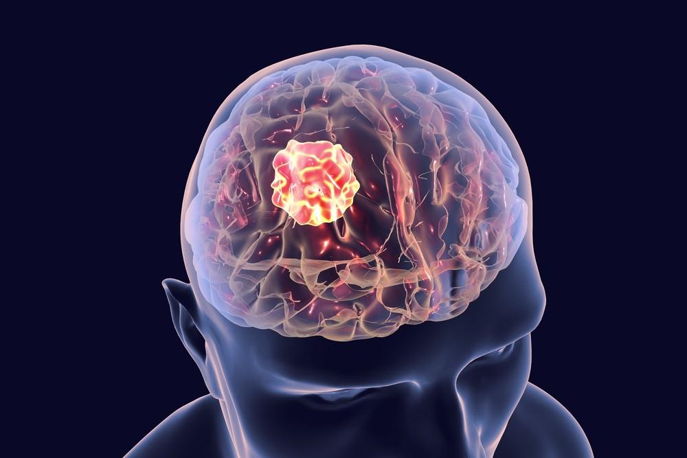 kanser otak