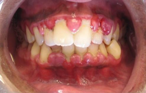 gusi bengkak ataupun gingivitis