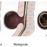 Spina bifida disebabkan kekurangan asid folik