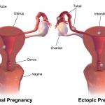 Kandungan luar rahim merupakan salah satu keadaan yang berbahaya bagi seseorang ibu. Ianya boleh menyebabkan kematian jika tidak dirawat diperingkat awal.