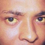 mata kuning