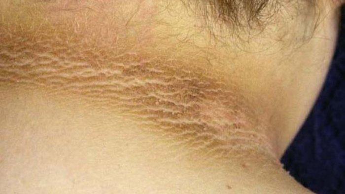 leher hitam