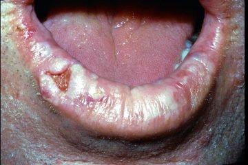 kanser mulut
