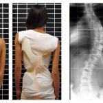 Skoliosis: Punca, Simptom dan Rawatan