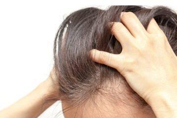 kulit kepala gatal