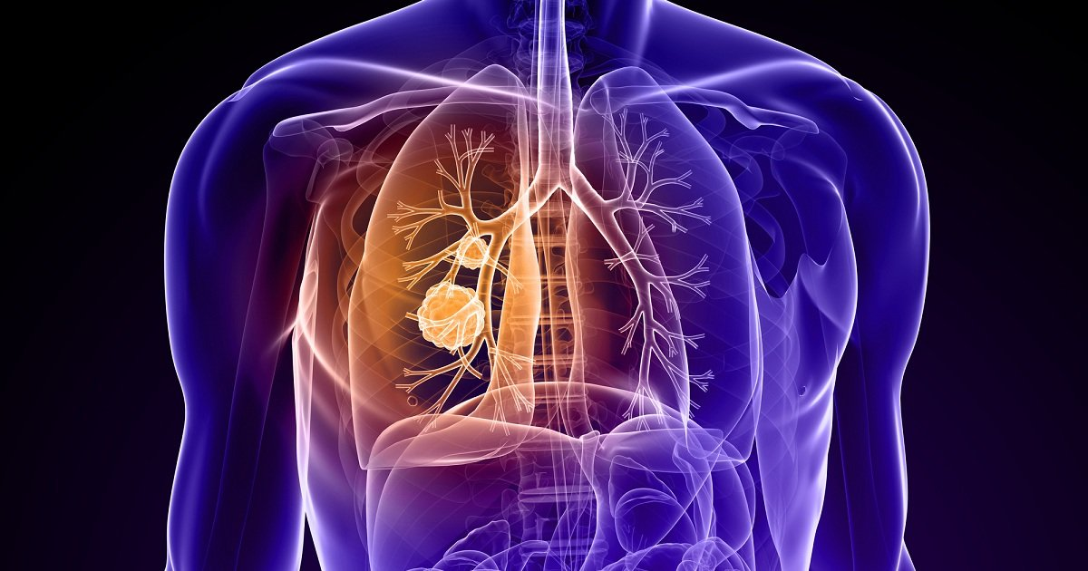 kanser paru paru