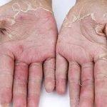 kulit mengelupas