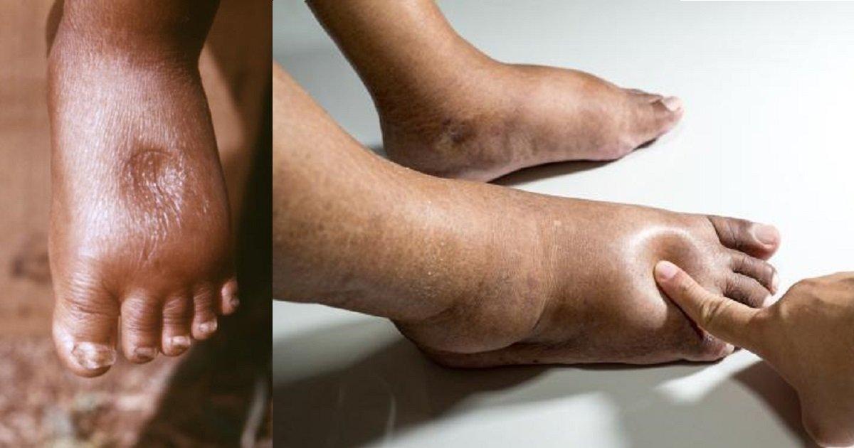 punca kaki bengkak