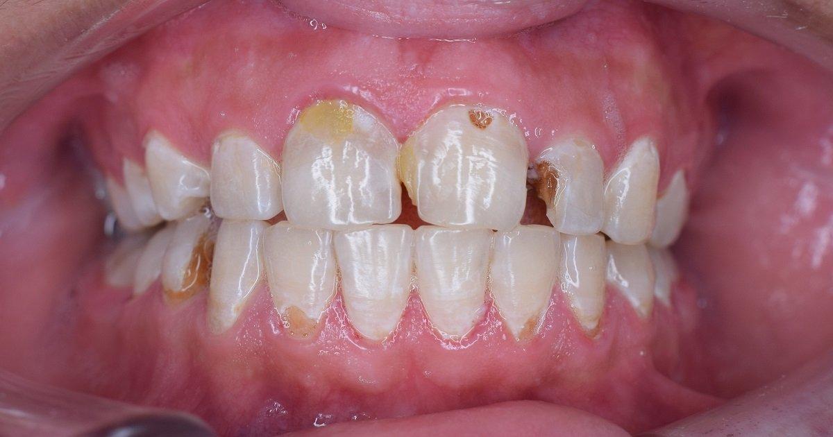 gigi rapuh