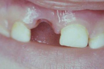 gigi tercabut