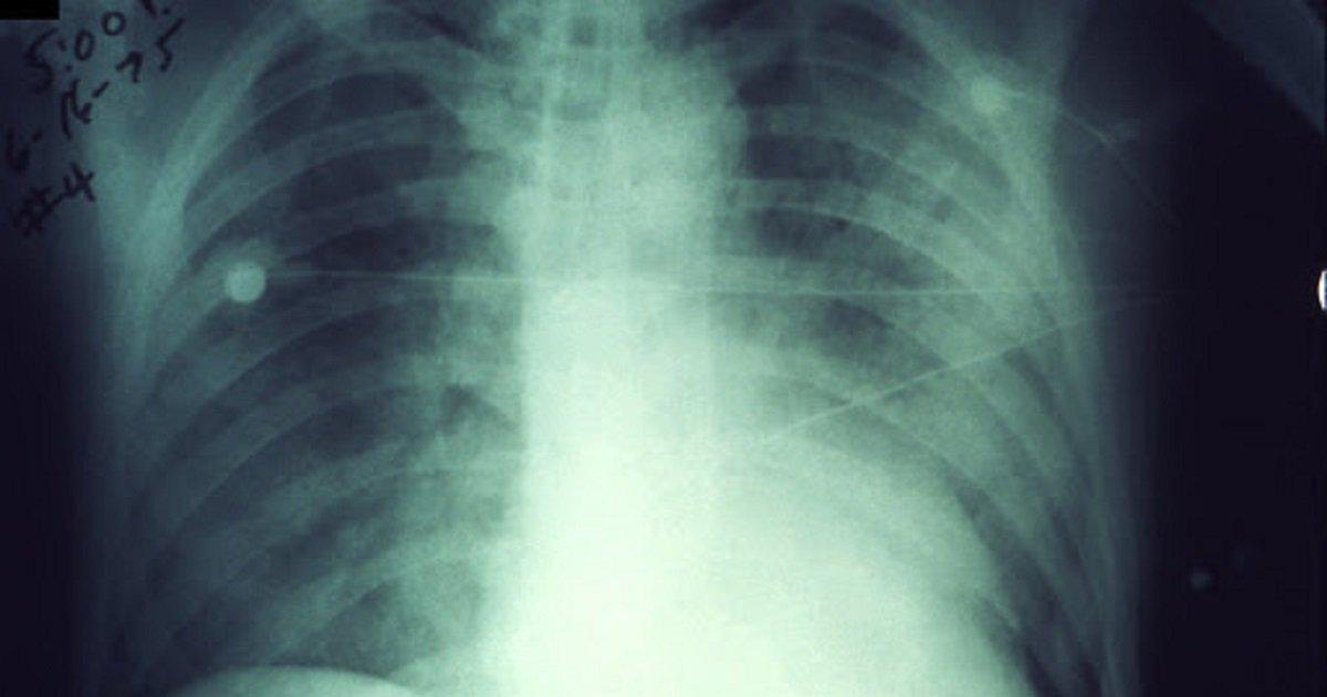 jangkitan paru-paru 2