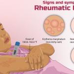 demam reumatik