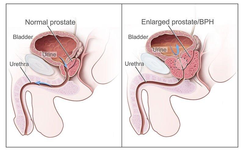 Kalenjar prostat dan prostat bengkak (BPH)