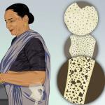 masalah osteoporosis