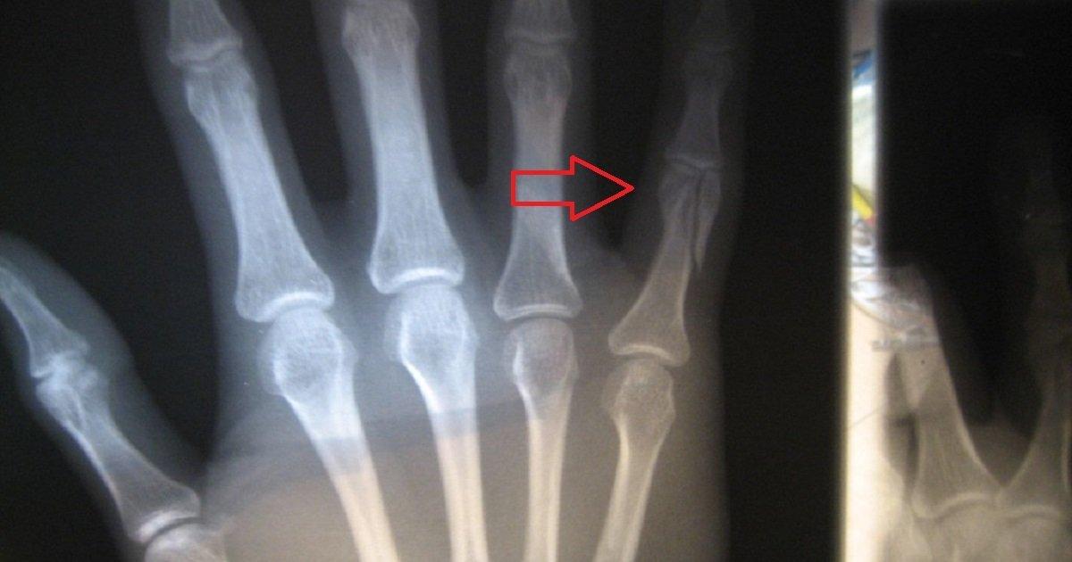 patah jari