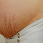 stretch mark tanda regangan