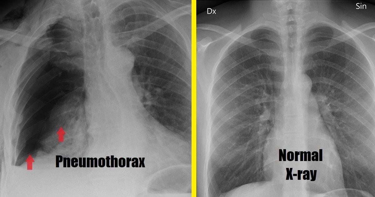 masalah pneumothorax