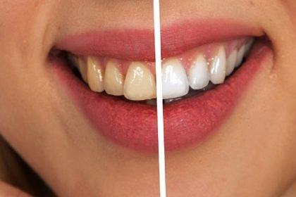 cara putihkan gigi