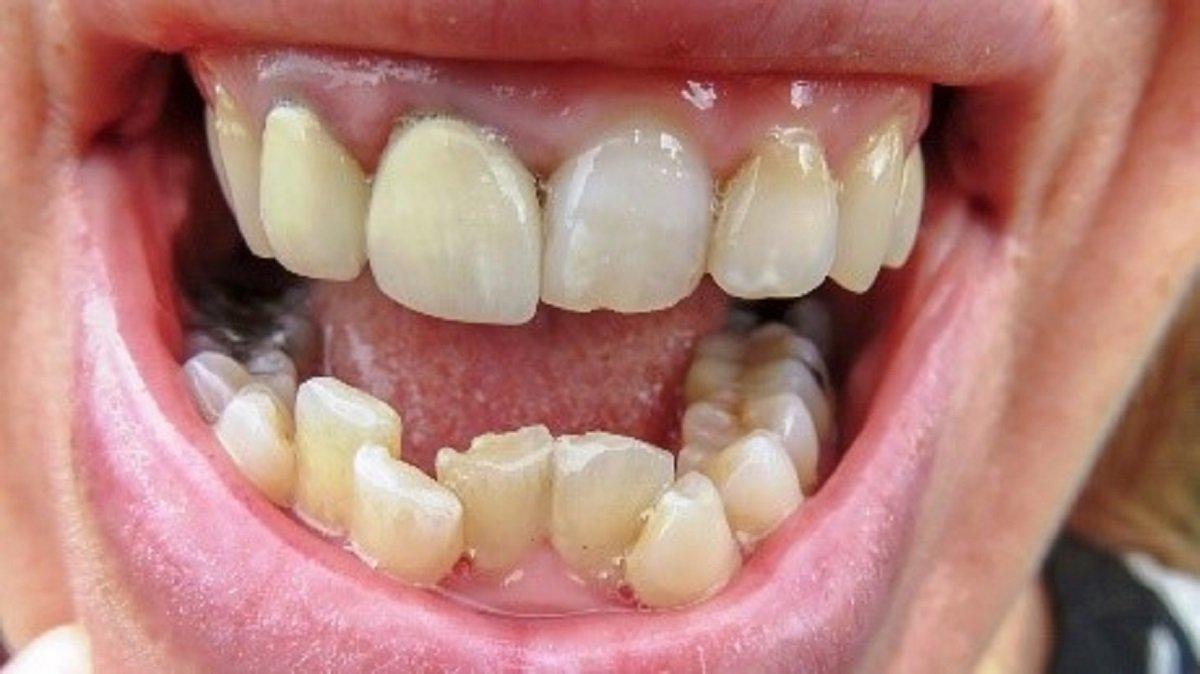 gigi berlapis besar