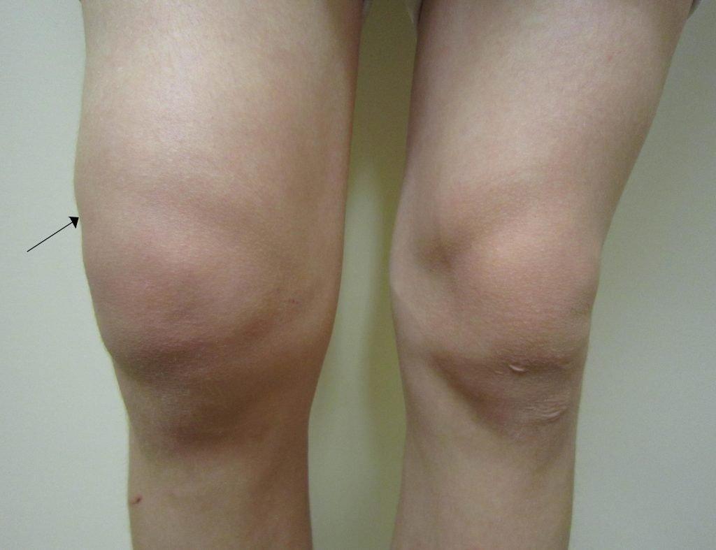 lutut bengkak atau lebam