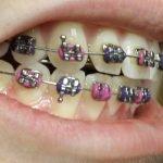 pendakap gigi