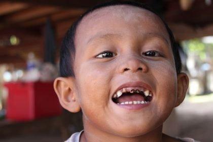gigi hitam