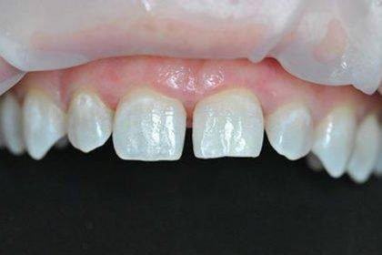 gigi jarang