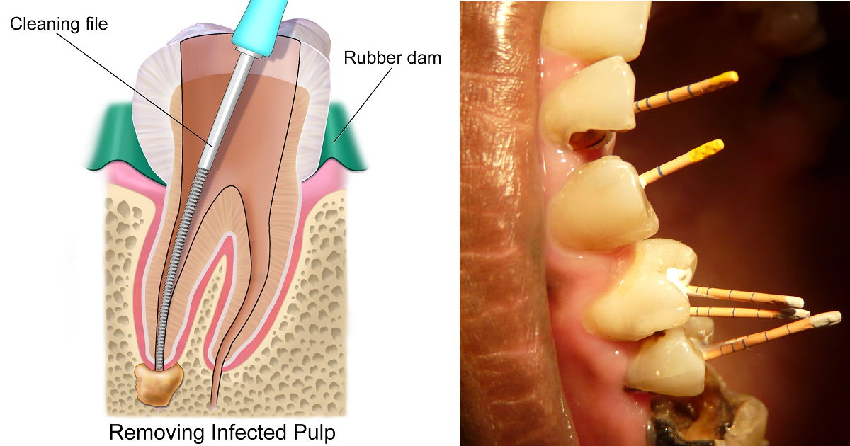rawatan akar gigi