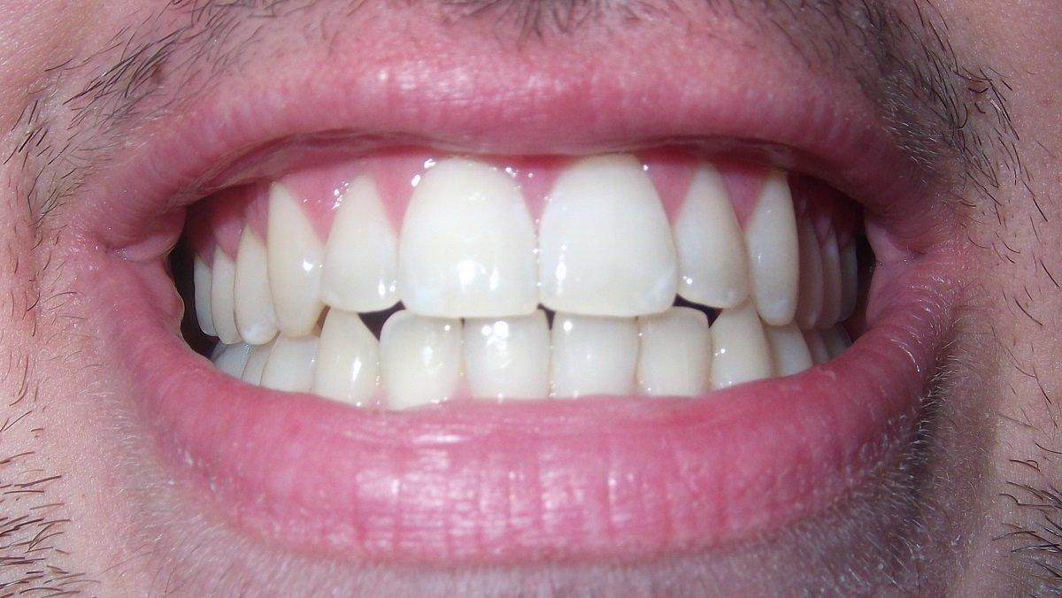 struktur gigi dan jenis